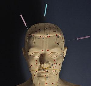 akupunktur punkte ohr